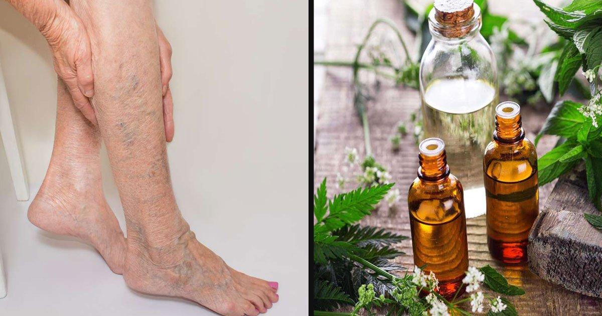 untitled 1 45.jpg?resize=1200,630 - Essential Oils Help In Reducing Varicose Veins