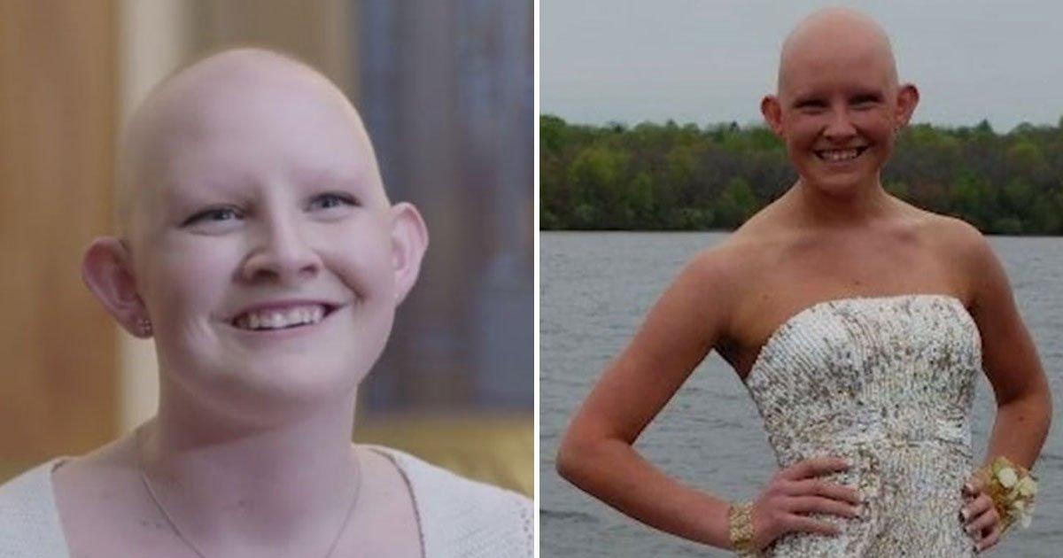 """woman refuses wig.jpg?resize=300,169 - Une femme atteinte d'alopécie refuse de porter une perruque : """"Je me sens plus bête avec que sans!"""""""