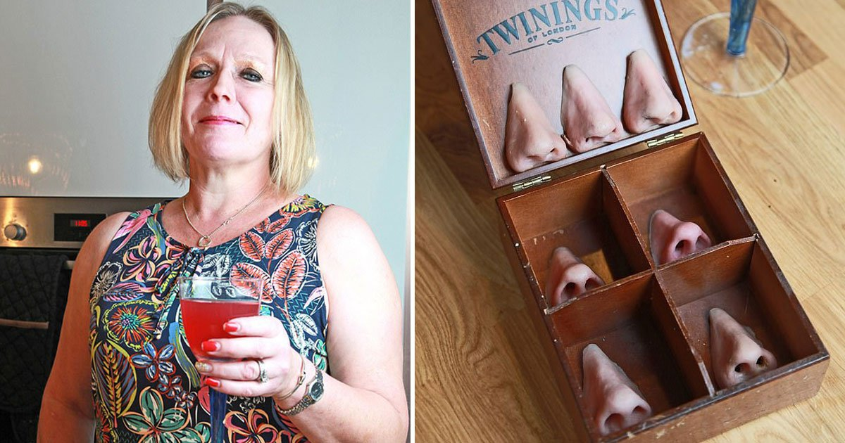 woman uses fake noses.jpg?resize=574,582 - Woman - Who Lost Her Nose To A Rare Disease - Now Uses Magnetic Prosthetic Noses