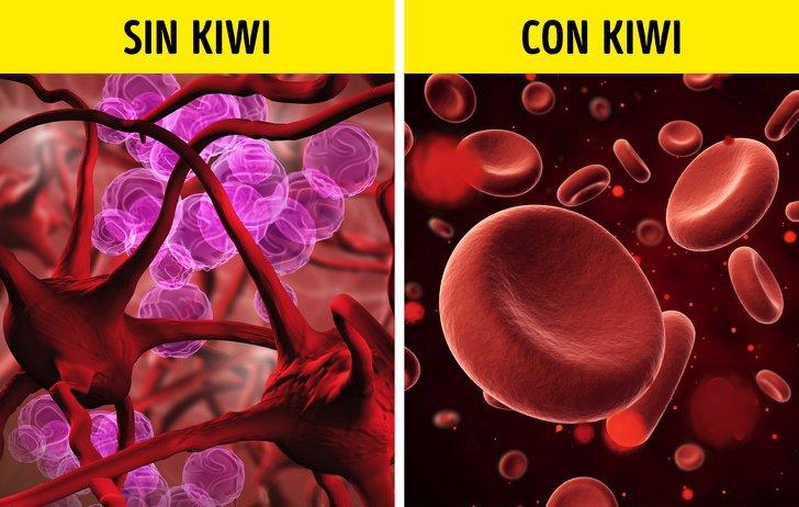 10 Beneficios de comer kiwi todos los días que pueden mejorar tu salud