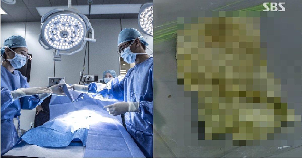 2 174.jpg?resize=1200,630 - '맹장수술' 이후에도 계속해서 '배 통증'을 느꼈던 이유 (황당주의)