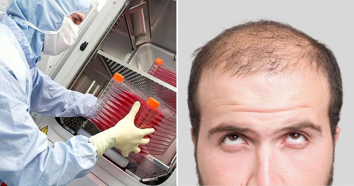 balding2.png?resize=412,232 - Un nouveau traitement contre la calvitie vient d'être approuvé par les autorités