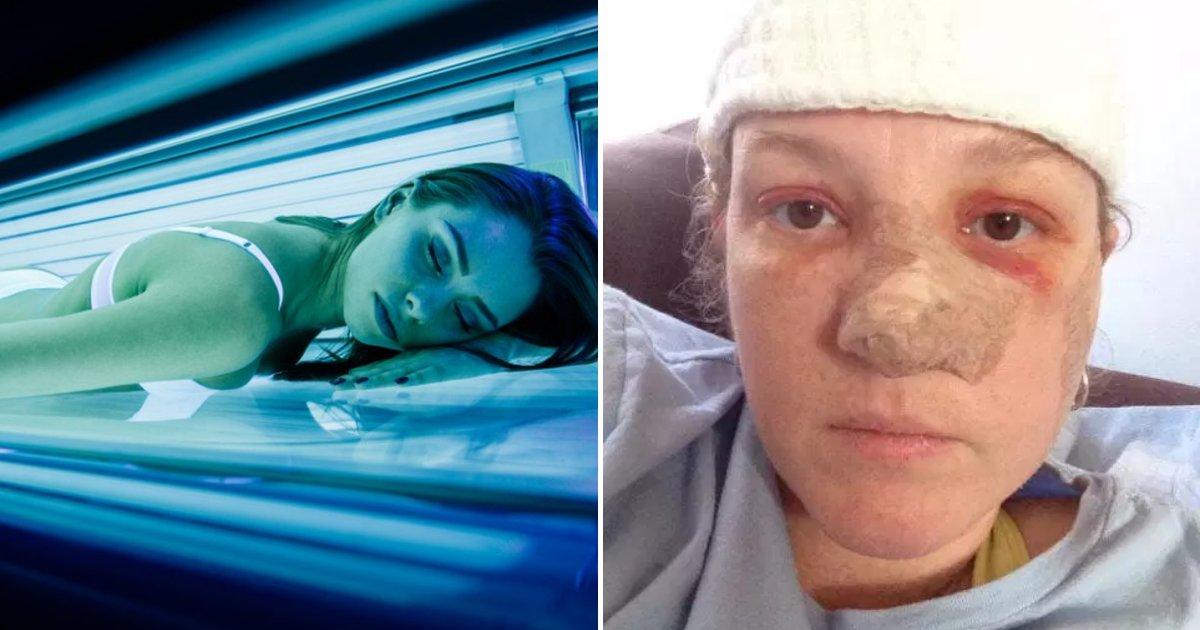 cancer5.png?resize=300,169 - Des séances d'UV ont laissé des personnes avec des trous dans le nez, des cratères dans les visages et des entailles sur tout le corps