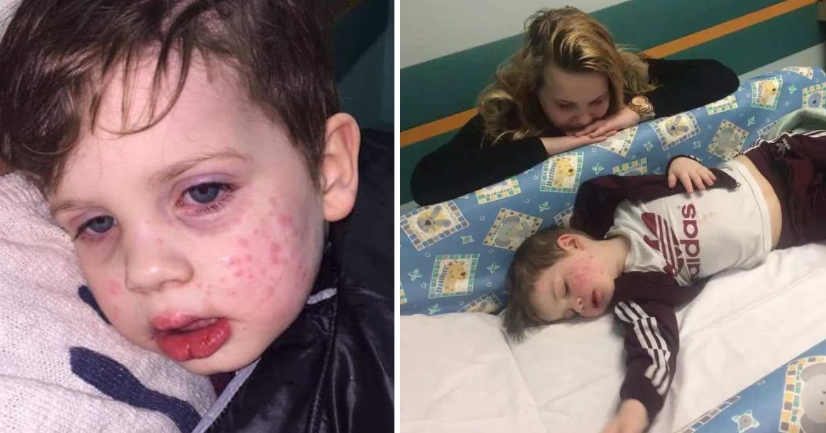 featured image 18.png?resize=412,275 - Mom Warned Parents Against Herpes After Her 3-Year-Old Caught It 'When He Was Kissed By A Relative'