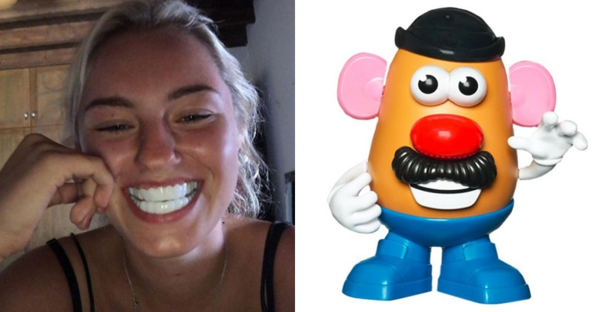 featured image 27.png?resize=412,232 - Using Dental Veneers Left The Teen Looking Like 'Mr. Potato Head' From Toy Story