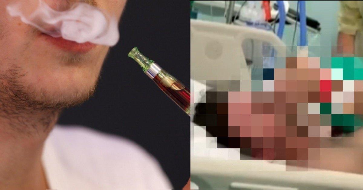 img 4960.jpg?resize=412,232 - 【動画あり】米国・電子タバコによる呼吸器障害で入院者多数、死亡者まで