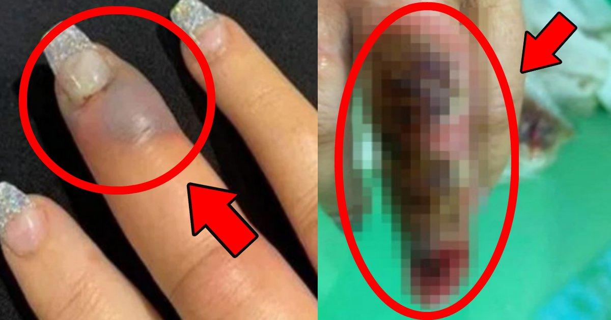 nail.png?resize=412,232 - ネイルサロンで施術後に救急搬送?指が腐っていき非常事態に!