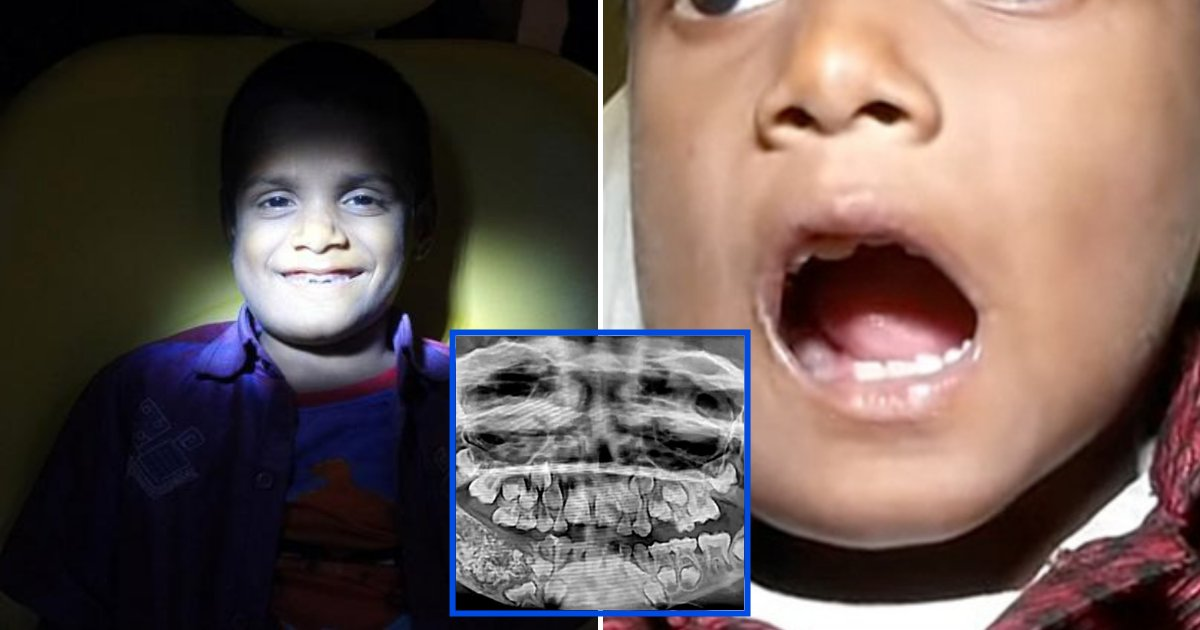 teeth5.png?resize=412,232 - Un garçon de 7 ans s'est fait enlever plus de 500 dents de la bouche