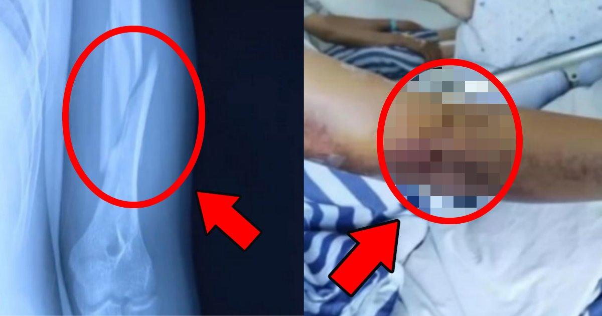 udezumou.png?resize=1200,630 - 友達との腕相撲で骨折?腕がよじれドス黒いあざができた少年の悲劇【写真あり】