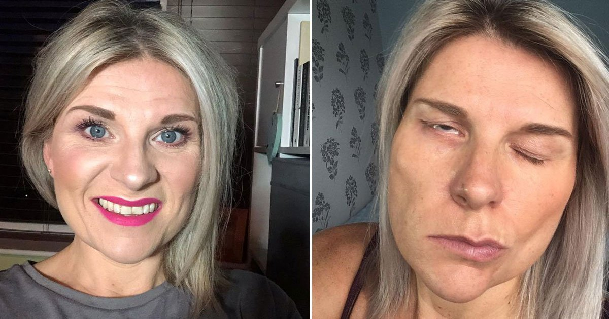 woman face paralyzed.jpg?resize=412,232 - Woman - Who Had A Cough - Woke Up With Half Her Face Paralysed