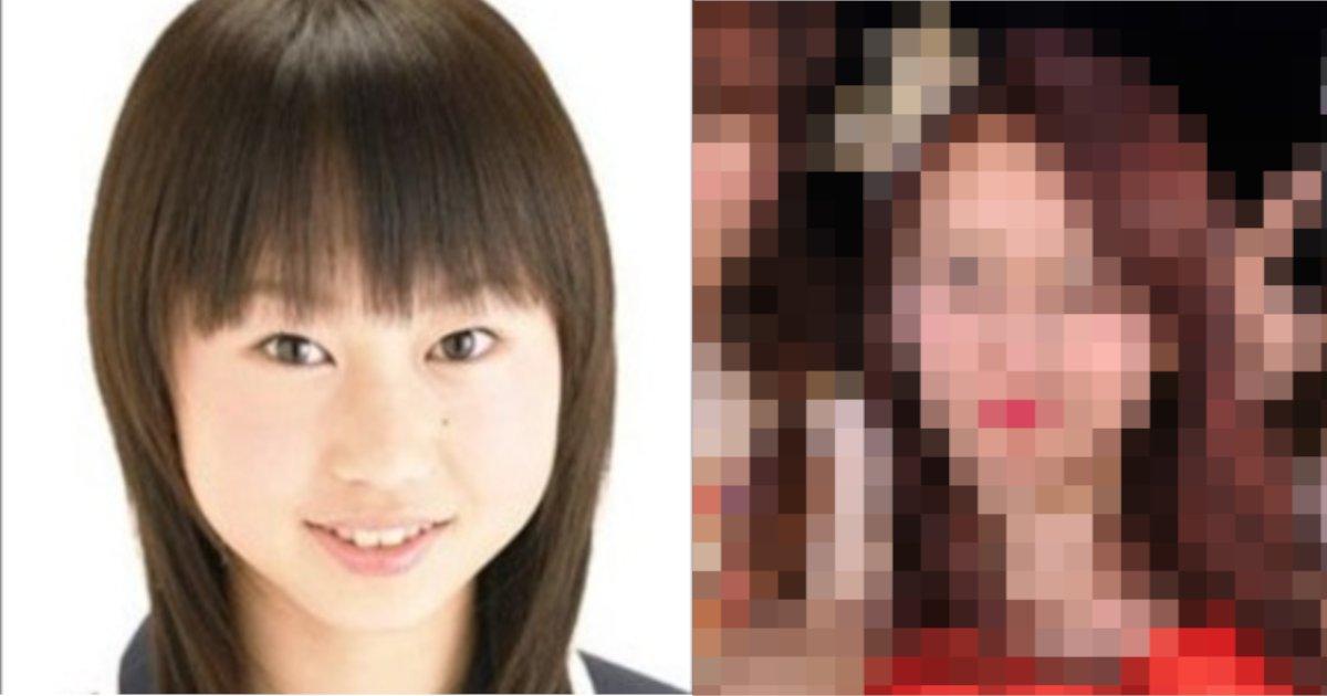 kobayashi.png?resize=300,169 - 元AKB48選抜メンバーが整形回数と費用を告白‼ その金額は?! 費用対価のなさに驚きを隠せない…