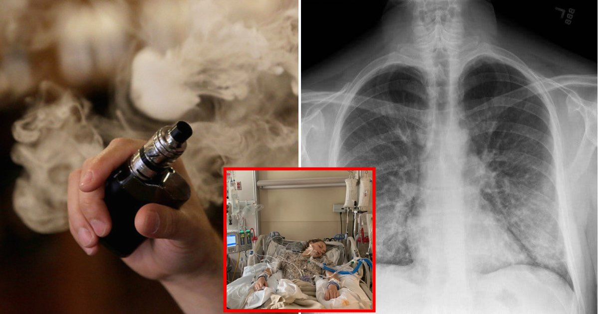 lung3.png?resize=1200,630 - A Second Person Has Passed Away From Mysterious Lung Illness Linked To Vaping, Health Officials Announce