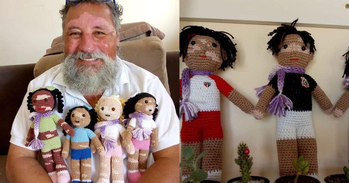 man with vitiligo knits dolls to make children with this condition feel normal and valued.jpg?resize=412,232 - Il valorise la différence avec ses poupées vitiligo