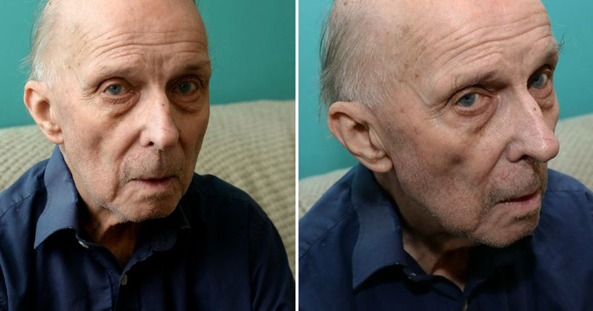 pensioner lump head.jpg?resize=412,232 - Pensioner Developed An Orange-Sized Lump On His Head After Falling Over At Wife's Funeral