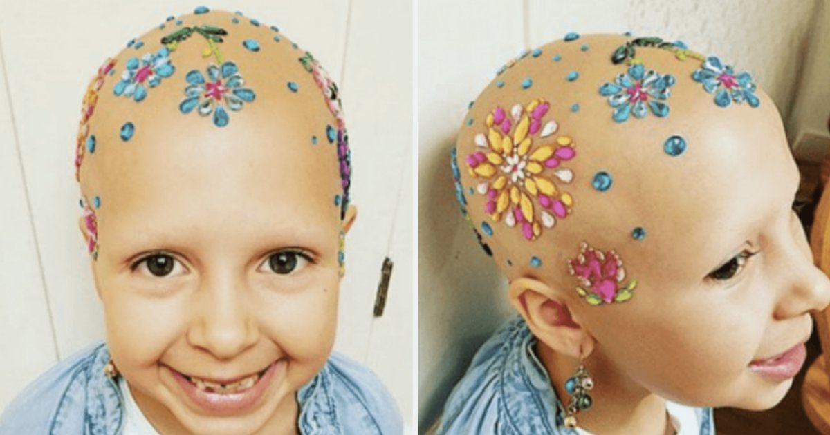 s4 8.png?resize=412,232 - Girl With Alopecia Proved A Disease Cannot Restrict You From Living