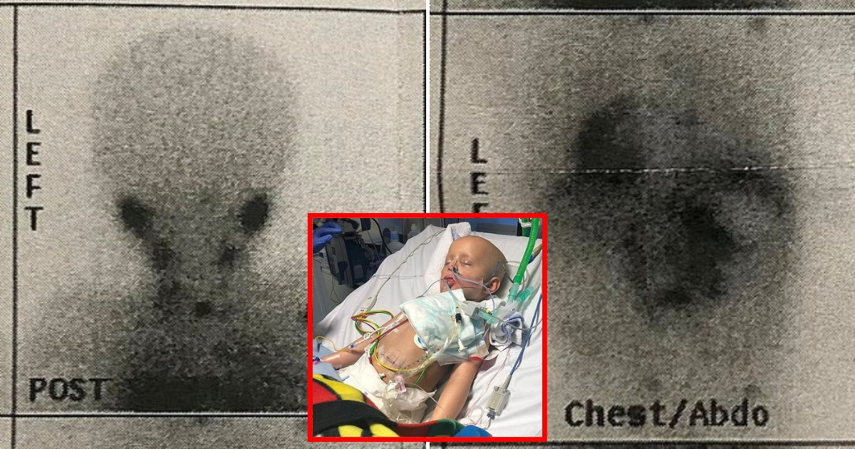 scan3.png?resize=412,232 - 5-Year-Old Boy Riddled With Cancer From 'Nose To His Knees' Regained His Strength