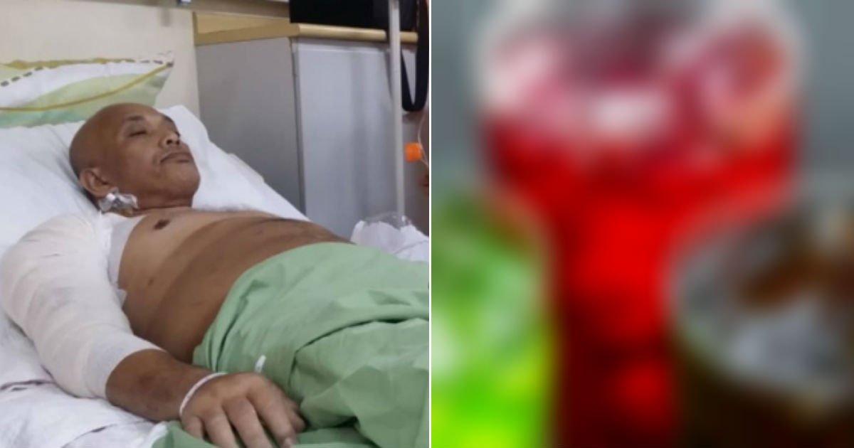 untitled 143.jpg?resize=412,275 - 매일 섭취한 'OOOO' 탓에 팔을 절단할 위기에 처한 남성