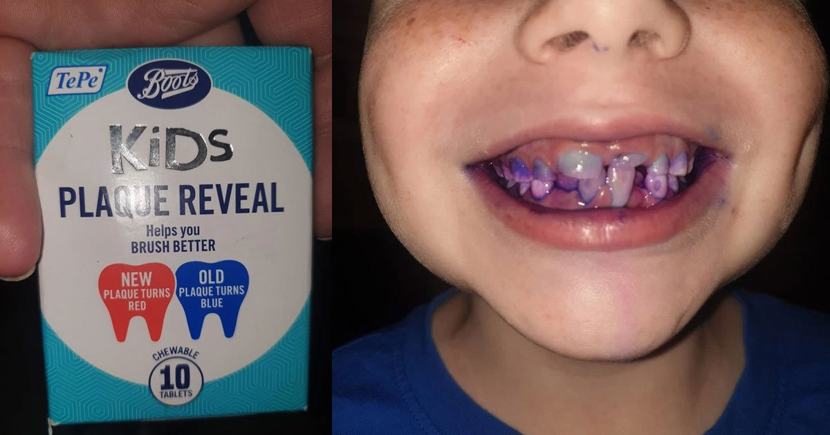 a mom shared how chewable dental tablets helped her son to see if he has brushed his teeth properly or not.jpg?resize=412,232 - A Mom Shared How Chewable Dental Tablets Helped Her To See If Her Son Brushed His Teeth Properly