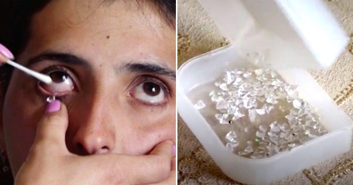 crystal6.png?resize=412,232 - Une femme de 22 ans affirme qu'elle souffre toujours à cause de ses «larmes de cristal»
