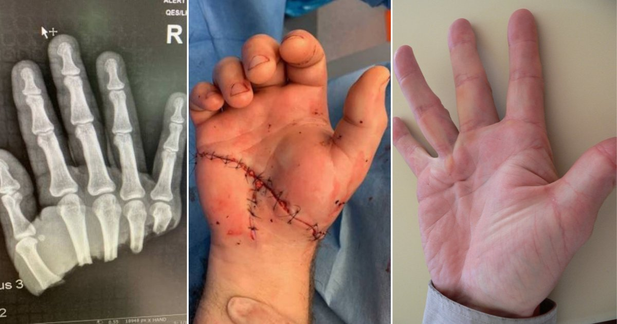 d 1 8.png?resize=412,232 - Man Who Had Lost His Hand Wiggled His Finger Within a Day of Surgery