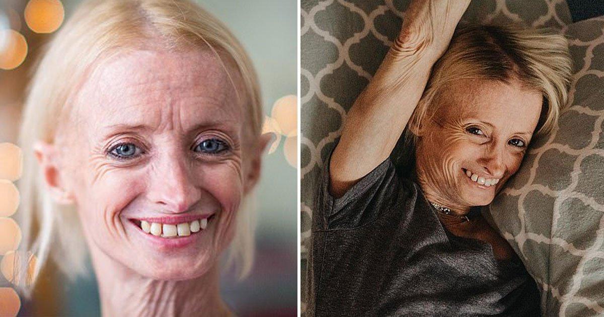 oldest survivor benjamin disease.jpg?resize=412,232 - Cette femme vieillit plus vite que la moyenne à cause de sa maladie, la Progéria