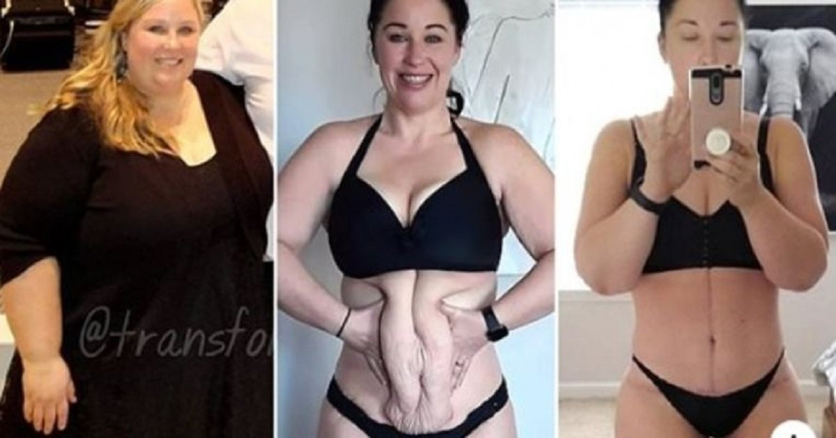w3 2.jpg?resize=412,232 - A Woman Lost An Incredible 234 Lbs. But Had To Undergo Surgery To Remove The Excess Skin