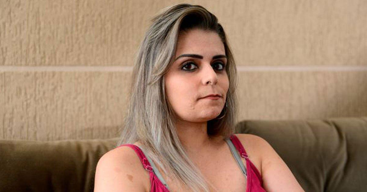 woman with 4kg tumors legs.jpg?resize=300,169 - Une femme refuse de couvrir ses tumeurs qui pèsent 4 kg pour sensibiliser le public