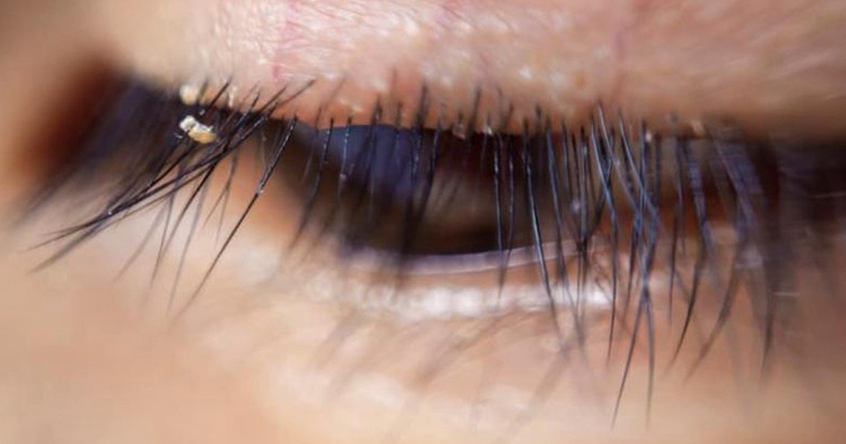 a 74.jpg?resize=412,232 - Not Washing Eyelash Extensions Could Make Them Be Home Of 'Lash Lice,' Doctor Revealed