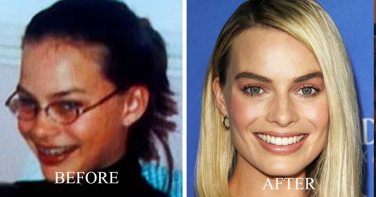 aggag.jpg?resize=412,232 - 9 Celebrities That Were Ugly Ducklings, But are now Idols for Many