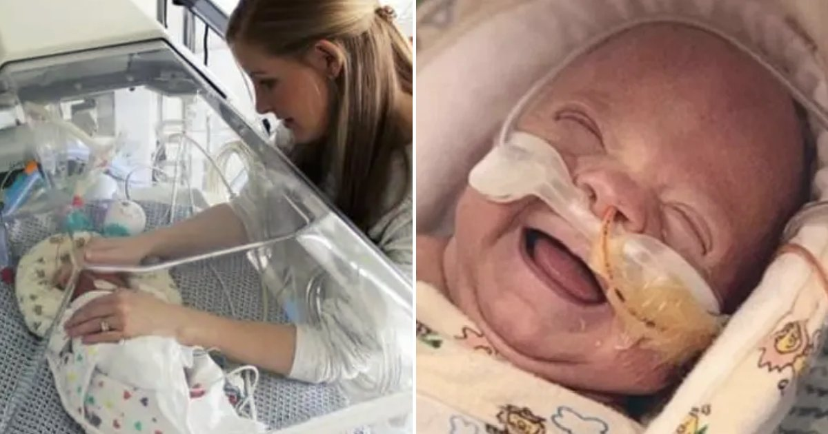 finn7.png?resize=412,232 - Premature Baby Was Born Weighing Only ONE Pound, Months Later He Goes Home Healthy And Happy