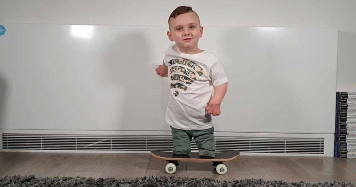 s3 11.jpg?resize=412,232 - A Young Boy Learned To Skateboard Despite Losing His Fingers And Legs