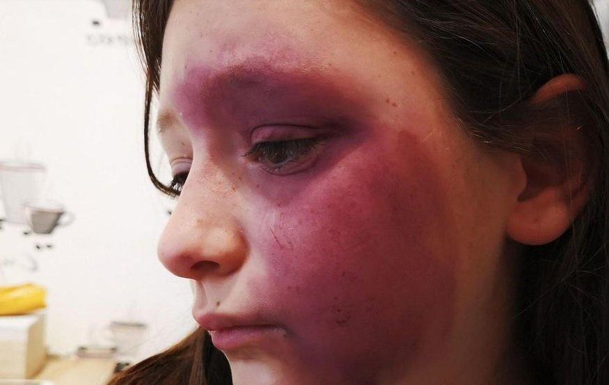 tallia.jpg?resize=412,232 - Une jeune fille de 10 ans a été rouée coups par trois élèves de son collège