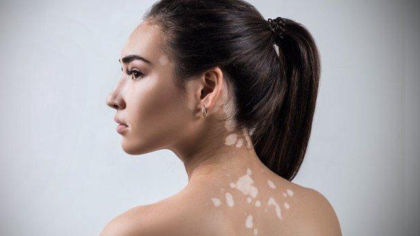 Resultado de imagen de vitiligo