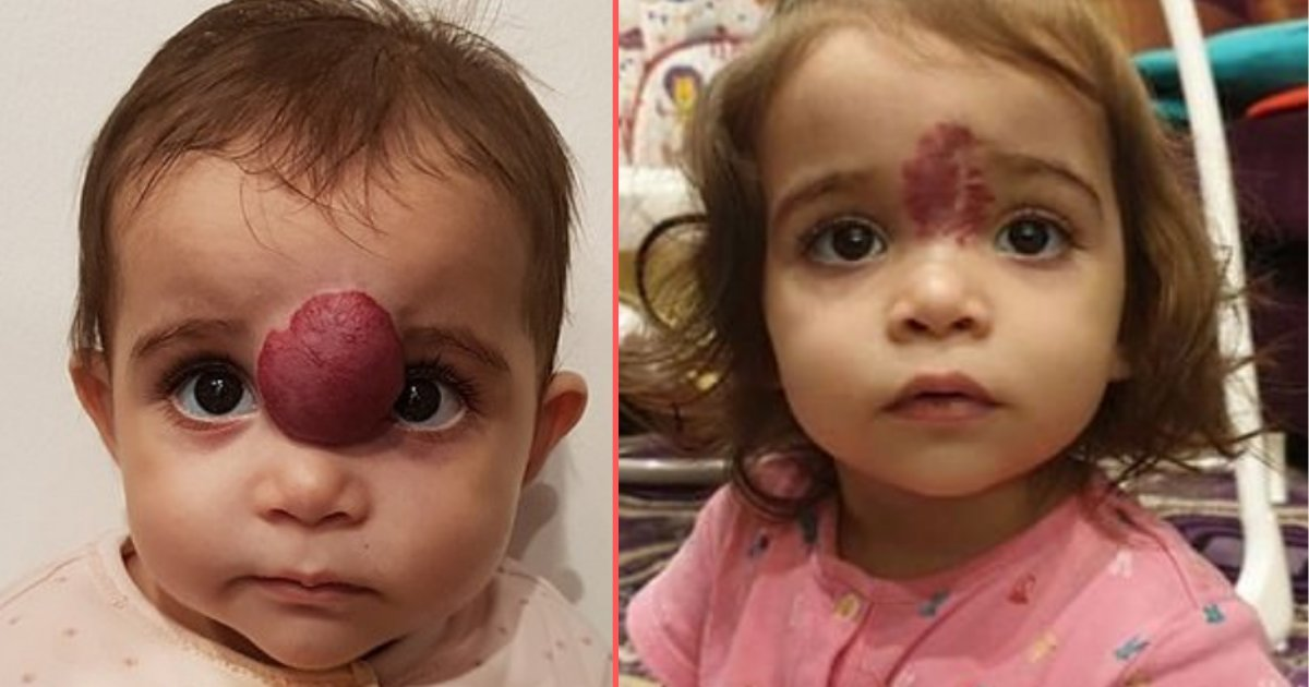 5 11.png?resize=412,232 - Kuwait Infant Diagnosed With Face Tumor Got it Removed Successfully Through Surgery