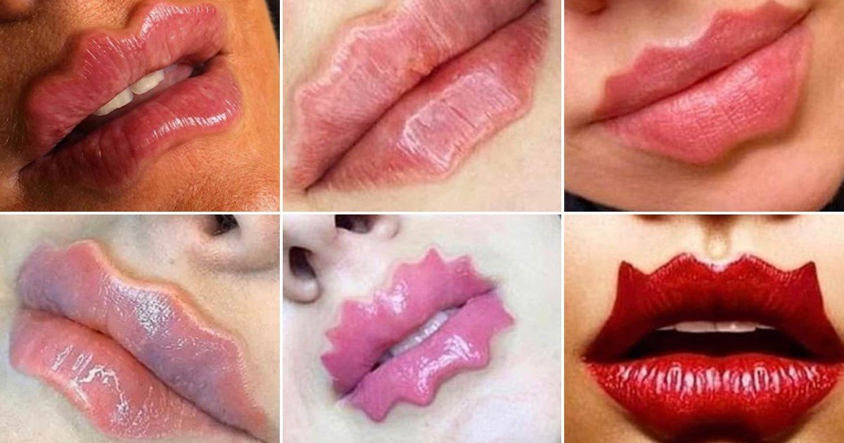 a 36.jpg?resize=412,232 - Women Are Injecting Fillers Into Their Lips To Create Unusual Waves For The New Beauty Trend