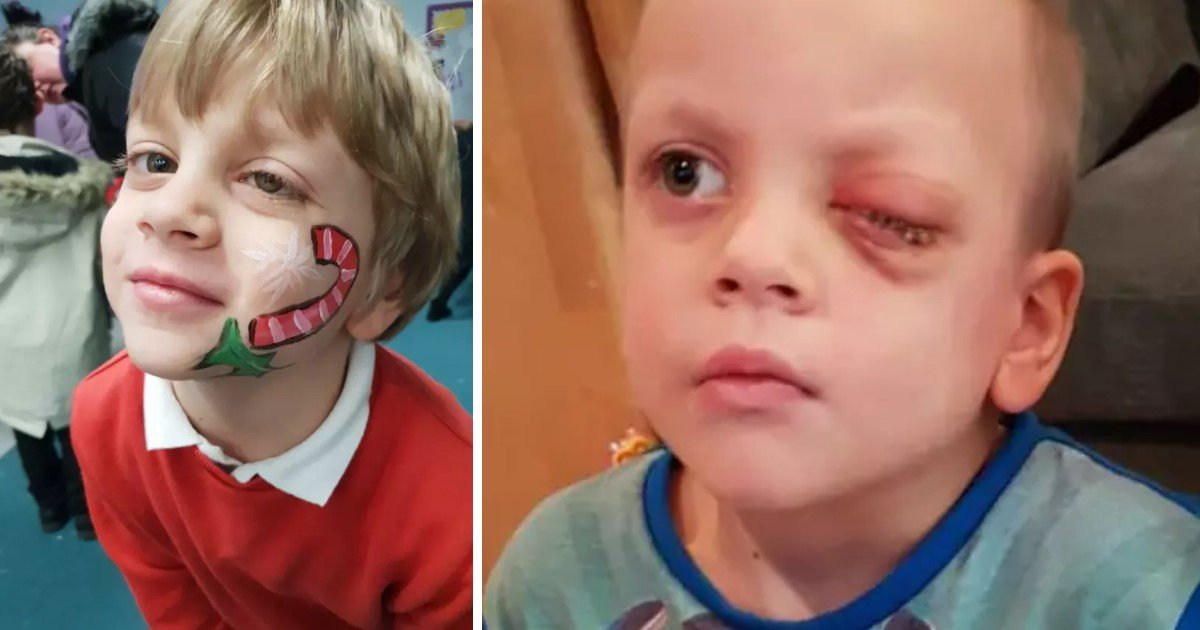 a 45.jpg?resize=412,232 - Parents Found Son Had Rare Form Of Eye Cancer After Seeing A Photo Of Him That They Took Using Phone's Flash