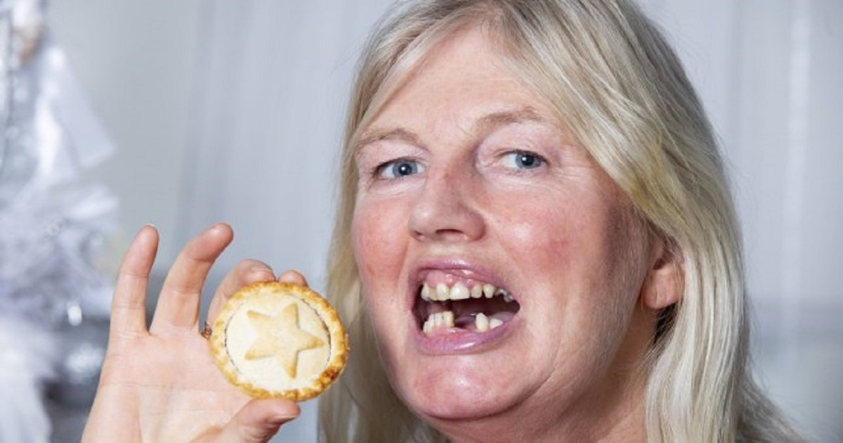 d3 2.jpg?resize=412,232 - Woman Accidentally Swallowed Her Dentures While Eating A Mince Pie