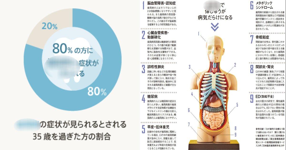 """e696b0e8a68fe38397e383ade382b8e382a7e382afe38388 6 3.png?resize=412,232 - 日本人の8割が""""OO病""""って?命にかかわる重大な疾患にも…"""