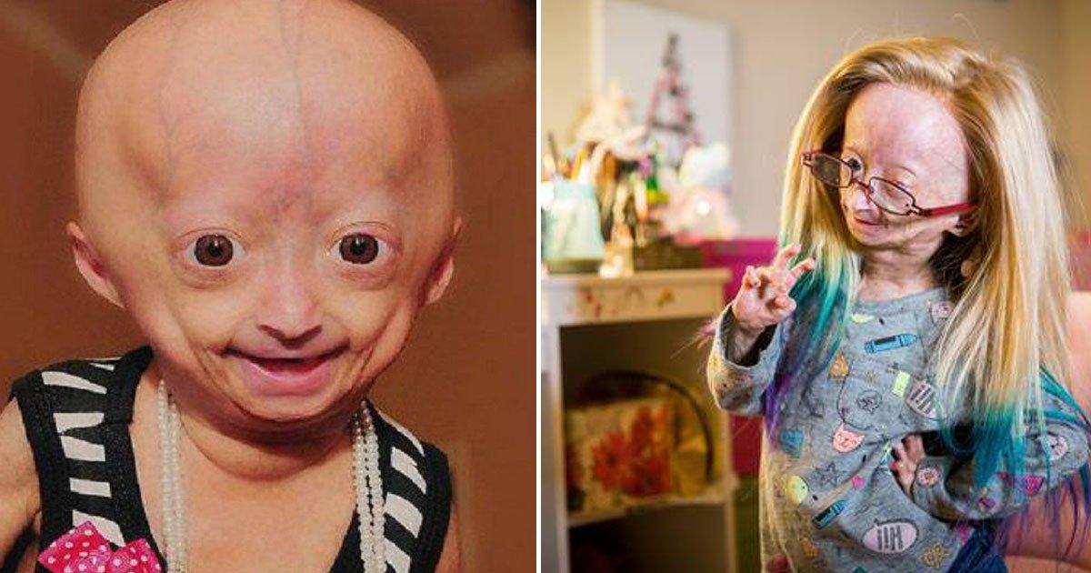 girl with rare condition.jpg?resize=412,232 - Voici la vidéo adorable d'une fillette qui souffre d'une maladie congénitale rare