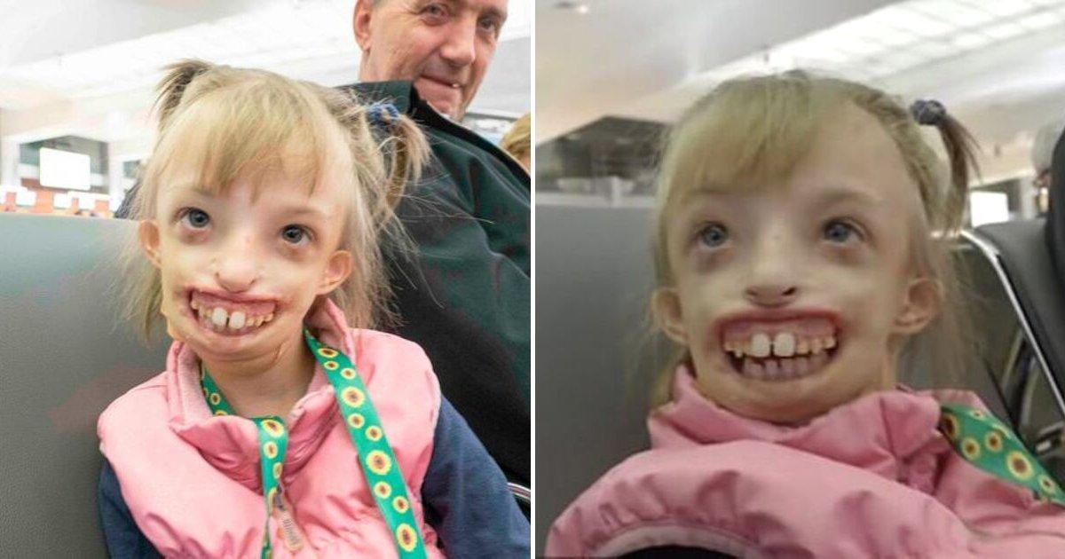 portad 2.jpg?resize=412,232 - Una Niña Nacida Con Media Cara Pudo Sonreír Por Primera Vez Después De Una Operación De 11 Horas