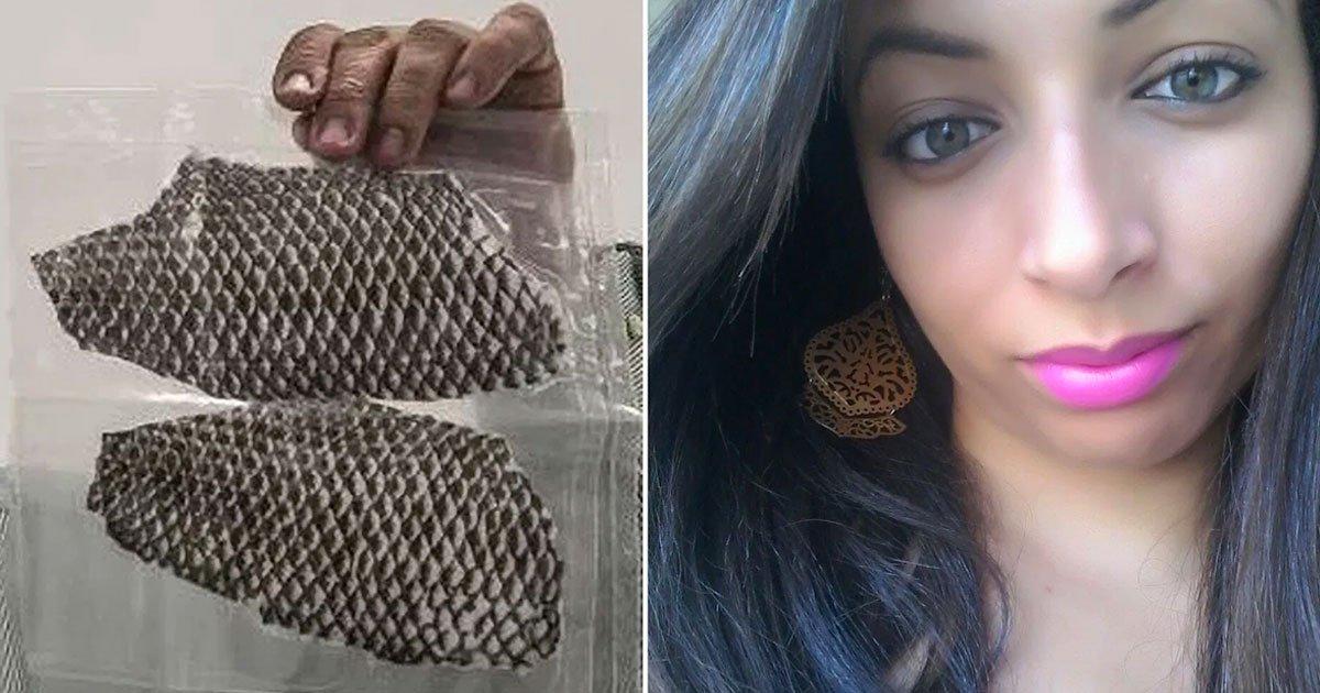 1 346.jpg?resize=1200,630 - Mujer Que Nació Sin Vagina Se Opera Para Crear Una Con Piel De Pescado