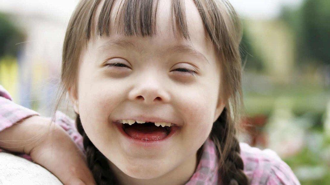 "Resultado de imagen de sindrome down niña"""