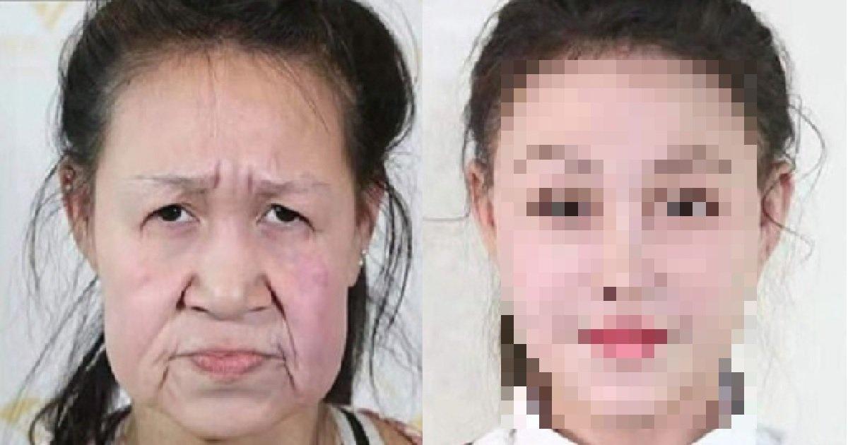 "2 152.jpg?resize=1200,630 - ""이 할머니는 15살입니다"" 그동안 주름진 얼굴로 살았던 한 소녀의 성형수술 비포&애프터"