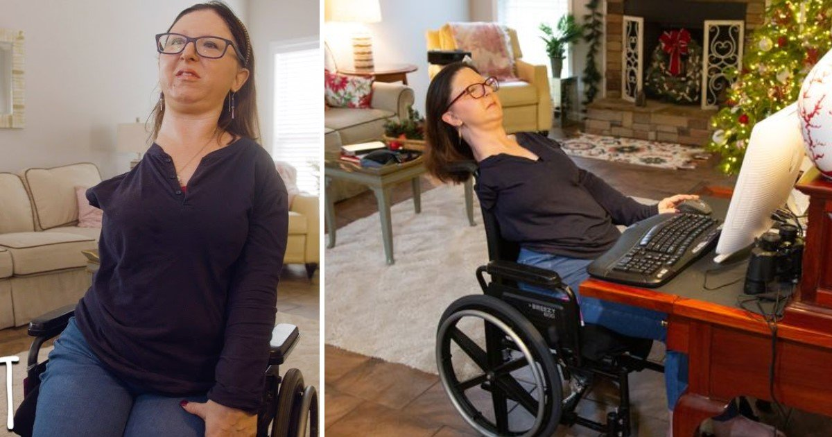 2 165.jpg?resize=1200,630 - A Woman Became Totally Immobile As Her Rare Condition Converts Muscles Into Bones