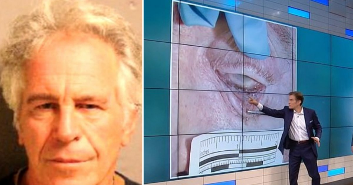 4 45.png?resize=1200,630 - Pathologists Pointed Out Burst Capillaries In Epstein's Eyes Suggesting He Was Strangled