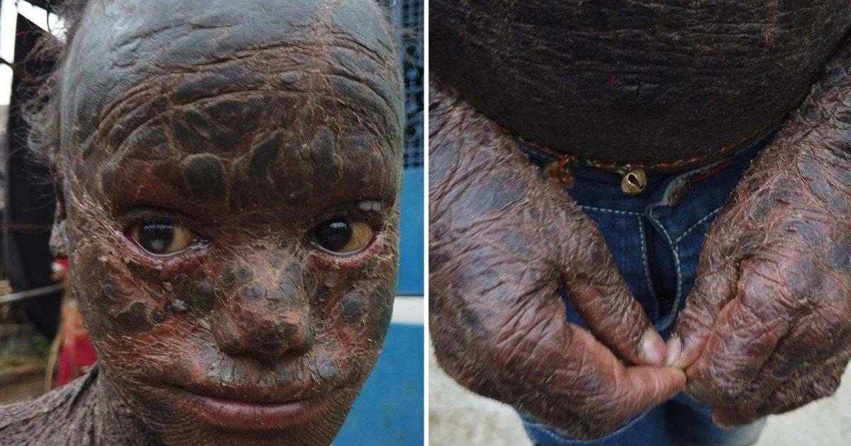 9 39.jpg?resize=1200,630 - Rare Skin Condition Led 10-Year-Old Boy To Have His Skin Covered In Thick Scales