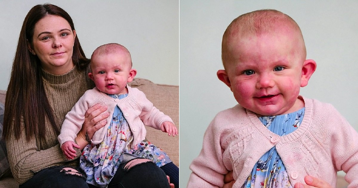b3 2.jpg?resize=1200,630 - A Mom Hid Her Daughter Born With Purple Birthmarks For Six Weeks Amid Fears Of Rude Comments From People