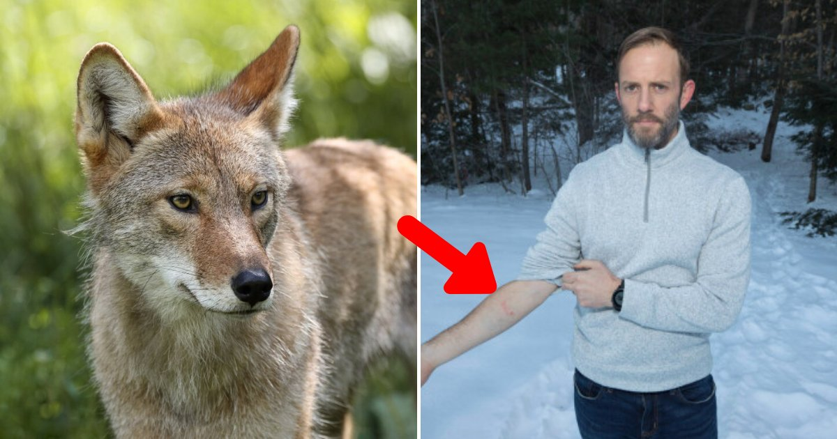 coyote6.png?resize=1200,630 - Coyote Attacked A 2-Year-Old Boy, Hero Dad Went Into 'Protection Mode' And Strangled The Animal