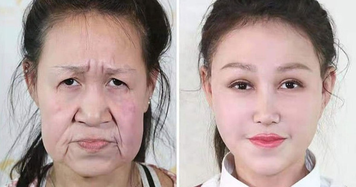 girl looked decades older surgery.jpg?resize=412,232 - 15-Year-Old - Who Was Bullied For Looking Decades Older - Got A New Appearance After Strangers Raised £20,000