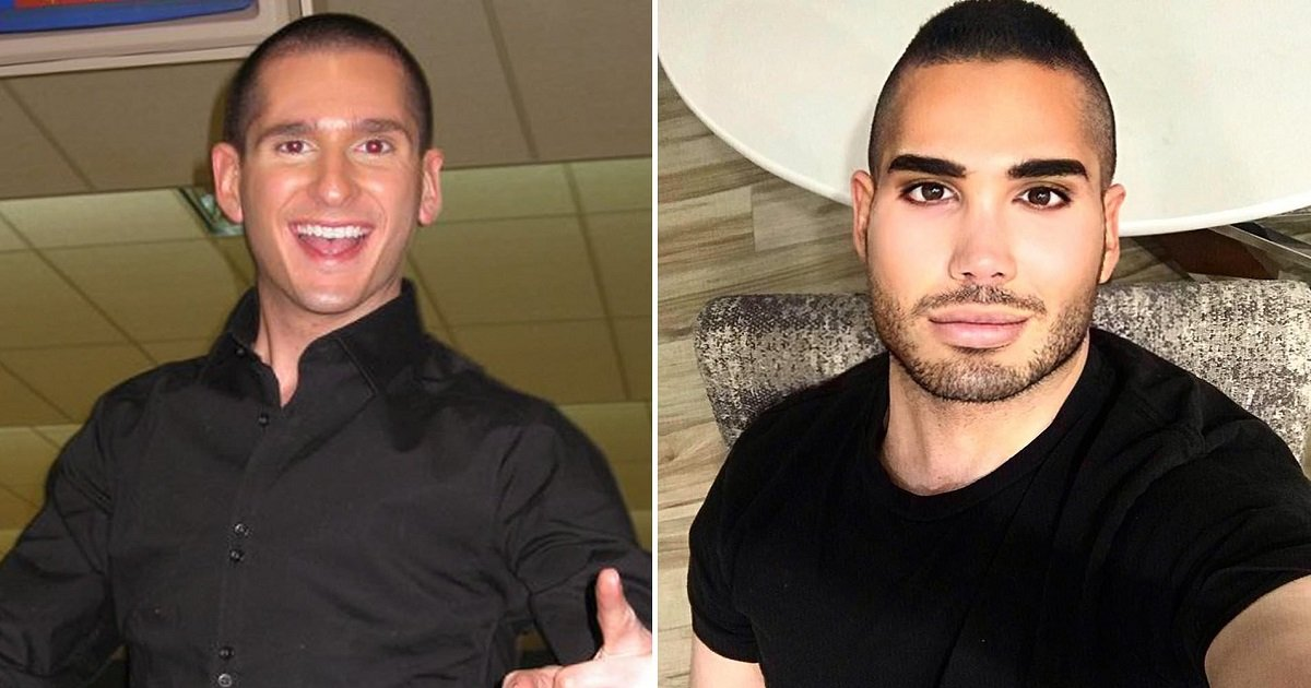 p3 10.jpg?resize=1200,630 - An Ex-Boy Band Star Who Believed He Was 'Too Plain Looking' Got An Extreme Makeover